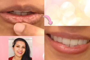 How to Heal Dry Chapped Lips | Results in minutes + Ayurvedic option